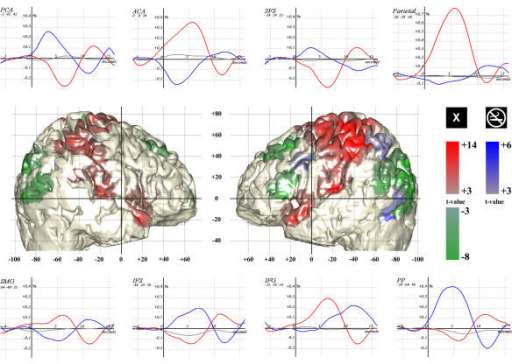 "fMRI results Lateral views of the normalized brain of 1 subject, colored as a function of contrast: Target-related activation (red and ""X"" marks), Target-related deactivation (green and ""no-smoking"" marks), and Novel-related activation (blue) (thresholds p ≤ 0.001, 100 voxel). The network that deactivated on target presentation comprised the superior frontal sulcus (SFS), the parietal cortex and the inferior frontal sulcus (IFS). The latter is supposed to be related with distractor inhibition since its posterior part is over-activated by Novels together with the posterior parietal cortex (PP). The network activated by targets comprised the supra-marginal gyrus (SMG) and the inferior frontal gyrus (IFG). Note that the TPJ is composed of the SMG (BA 40) in its upper part, and of the superior temporal gyrus (BA 39) in its lower part. The peristimulus BOLD signals are displayed for each relevant region for Targets (red), Novels (blue) and frequent distractors (gray). The curves are computed by simple averaging after regressing the other condition effect and removing high- and low-frequency components. The variation in signal intensity is indicated as a percentage of the MRI signal, and the scale is similar for all except the parietal area. Notice the balance between the anterior cingulate area (ACA) and the posterior cingulate area (PCA). Those charts also exclude the possibility for a threshold effect to account for the absence of Novel-related activation of the EXO network."