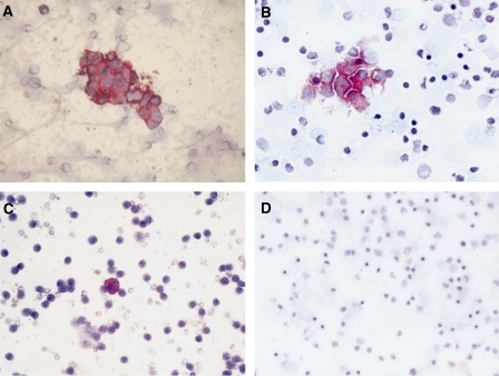 Cytospin of BM aspirates fixed in acetone and immunologically stained with anti-GD2 antibody. (A, B) Rosettes of NB cells stained in red, from patients F/18 and F/8, respectively; (C) a single NB cell stained in red from patient M/73; (D) a completely negative aspirate. Magnification is × 40.