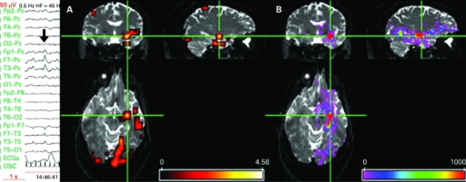 Left panel shows EEG recorded during fMRI scanning (10–20 system, upper 10 channels referential, lower 8 bipolar (OSC channel marks scanner gradient switching)) demonstrating left temporal activity in the delta/theta band with frequent intermixed spikes phase reversing at T3 (bold arrow). (A) Significant anterior temporal IED-related fMRI activations SPM{T} overlaid onto structural echo planar image (b = 0), showing left temporal and bilateral occipital fMRI activations. There were no significant deactivations. Scale represents z-score. (B) Tractography findings overlaid onto structural echo planar image, showing white matter connectivity to occipital and frontal areas. Cross hairs at left temporal fMRI maximum and the tractography seed region. The colour bar represents a measure of connection probability or connection confidence to the start point.
