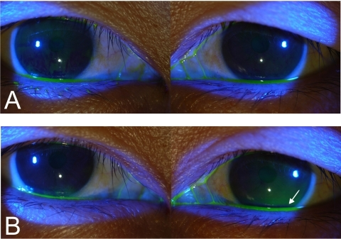 Result of Fluorescein dye disappearance test before silicone intubation (A: immediately after dye instillation, B: five minutes after dye instillation) This patient complained of epiphora recurrence in the left eye after the planned removal of the silicone tube following anatomically patent DCR. Note that fluorescein dye remained in left eye on dye disappearance test (Bottom right, arrow).
