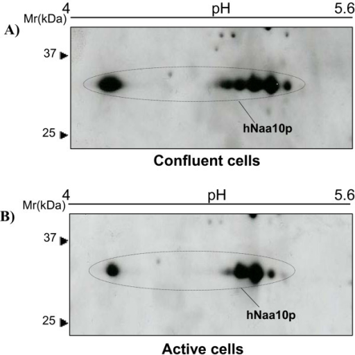 hNaa10p in confluent and active cells. 50 μg proteins of each sample resuspended in rehydration buffer and analyzed by 2D-SDS PAGE using 13 cm IPG pH 4–7 for IEF. hNaa10p was detected by immunoblotting using anti-hNaa10p. The molecular size markers are indicated to the left. (A) Resting cells were grown for near 6 days without medium change. (B) Active cells were splitted into fresh medium 16 hours before harvesting.