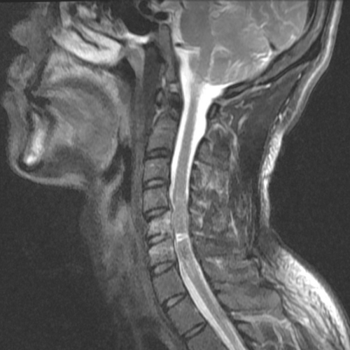 retrolisthesis due to accident A leaning-forward or semi-kyphotic posture may be seen, due to compensatory changes retrolisthesis grade 1 retrolistheses of c3 on c4 and c4 on c5.