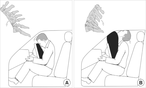 Summarization of the hypothesized mechanism of the injury. (A) During the initial short moment of the collision, the airbag is just in contact with the torso, but not with the face of the patient. As a result, compressive flexion force interacts at the cervical spine, resulting in C5, C6 vertebral body fractures. (B) In the late stage, the patient override the airbag, which causes him to hit his head on the roof and windshield of the vehicle, resulting in acute cervical hyperextension. The spinal cord transection occurs by posterior displacement of the C5 vertebral body against the cord in this powerful distractive extension injury.