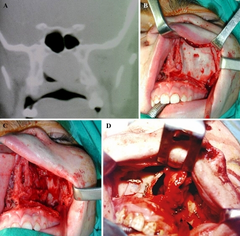 a Tumor in the roof of the nasopharynx. b Facial degloving and osteotomies including the anterior, medial and lateral walls of the maxillary sinus. c Once removed the posterior wall access is gained to the nasopharynx and infratemporal fossa. d Reposition of removed bones at the end of procedure
