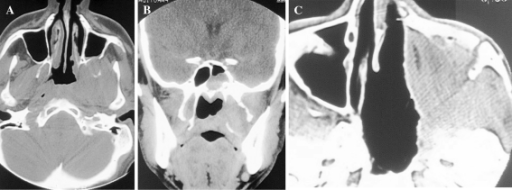 a Axial CT showing an advanced tumor involving the lateral wall od nasopharynx, infratemporal fossa, pterygoid plates and posterior wall of maxillary sinus. b The coronal CT shows an extension into the sphenoid sinus. c Postoperative CT after a facial translocation approach. The anterior maxillary sinus wall and orbito-zygomatic bones are repositioned and a temporalis muscle flap fills the operative cavity