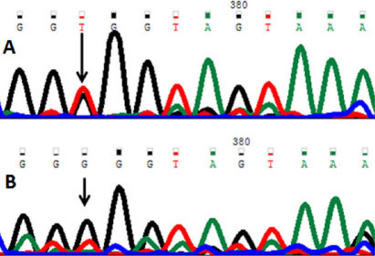 DNA sequence of PAX6 equivalent to codon 71–75. A: The reference sequence derived from the control shows the heterozygous c.216T>G change which predicts a codon change from GGT>GGG and p.G72G mutation. B: The sequence derived from another patient shows a homozygous p.G72G mutation.