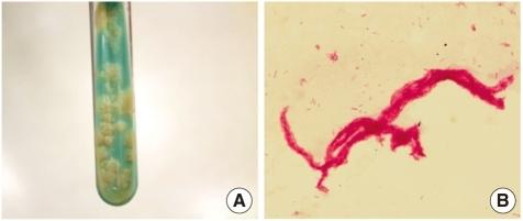 gram stain lab Lab dept: microbiology/virology test name: gram stain general information lab order codes: gram synonyms: smear, gram stain bacterial smear, gram stain cpt codes: 87205 - smear, primary source with interpretation gram or giemsa.