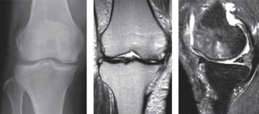 A. An AP radiograph from a 74-year-old woman, who had had sudden onset of right knee pain 7 weeks previously, showing a radiolucent oval lesion in the medial femoral condyle. The patient was classified as being at stage 2 of SONK and Kellgren-Lawrence grade 3. B. A coronal T2-weighted MRI showed an area of low signal intensity. C. A sagittal T2-weighted MRI with fat suppression showed subchondral changes and extensive bone marrow edema