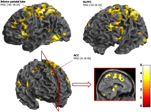 fMRI results for the interference effect in the MC context.This contrast evidenced ACC, DLPFC, and inferior parietal lobe activations (statistical threshold at p<.001 uncorrected for the present display).