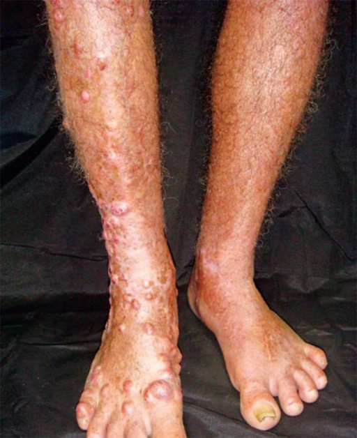 Multiple ill-defined, smooth, shiny, elastic nodules on the left lowerlimb