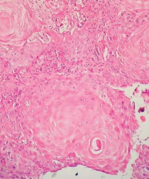 Histopathological examination revealed epithelial tumor islands of varying sizein the dermis. Horn pearls and dyskeratotic cells with hyperchromatic nuclei arepresent within the islands (HE X 20)