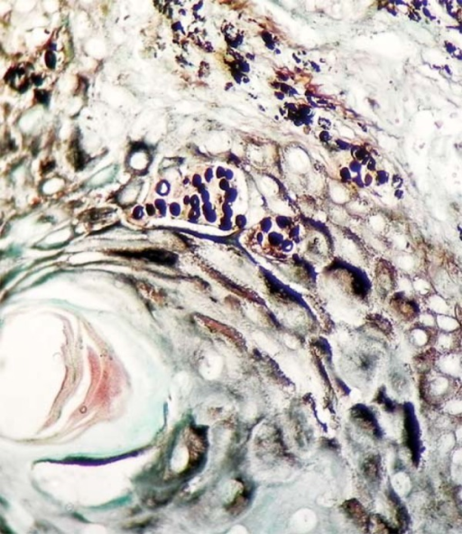 GMS stain showed the typical yeasts of lobomycosis in chains of uniform round tooval cells within the tumoral tissue