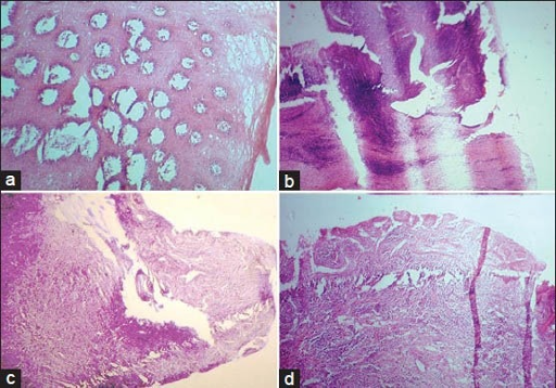 (a) Tangential section of epithelium caused by improper orientation. (b) Thick and thin section formed due to loosely attached microtome knife. (c) Knife scoring appeared in the section due to a small nick in the knife edge. (d) Folds and wrinkles within the histological section produced by a blunt microtome knife (H&E stain, ×100)