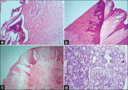 (a) Displacement of bone during microtomy in association with the use of dull knife. (b) Microscopic section showing folding. (c) Residual wax within the stained section. (d) Stain deposits within salivary gland tissue (H&E stain, ×100)
