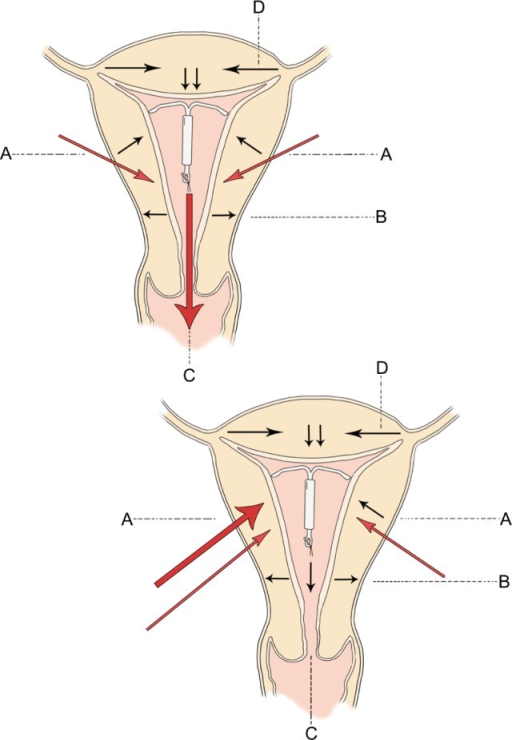 Direction of uterine forces in the normal intrauterine open i direction of uterine forces in the normal intrauterine device containing uterus are given at a ccuart Gallery