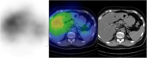 For131I-MIBG acquisition, 40 MBq radiopharmaceutical was injected. A whole body (4 cm/minute) and abdominal SPECT/CT acquisition were performed on MEDISO AnyScan SC system (Budapest, Hungary) 72 hours after the injection. SPECT parameters were: 1 minute/projection, 64 views, matrix size 64 × 64. A 16-slice CT was used, with 120 mAs and 120 kV abdominal filter. For the SPECT reconstruction OSEM method was performed. None of the adrenal regions showed abnormal focal uptake. MIBG: metaiodobenzylguanidine, SPECT: Single-Photon Emission Computed Tomography, CT: computed tomography, OSEM: Ordered Subset Expectation Maximization.