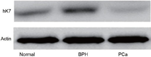 Western blots showing expression of hK7 in PCa tissues, BPH tissues and normal prostate tissue. BPH: benign prostate hyperplasia; PCa: prostate cancer.