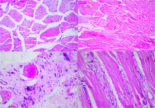 Muscle biopsy showed marked increase of internalized nuclei, severely atrophic muscle fibers, muscle fiber necrosis and regeneration of isolated muscle fibers.