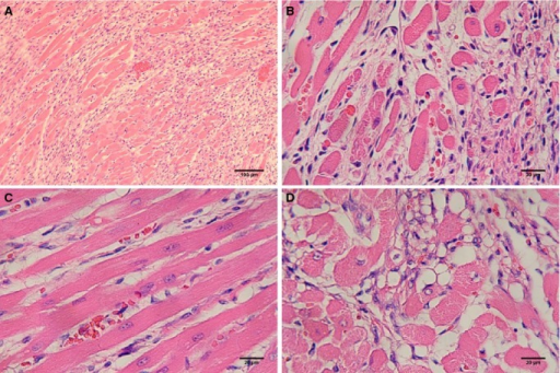 Representative photographs showing histopathological changes on day 8 (A) myonecrosis and interstitial space filled with collagen; (B) inflammatory cells and intramyofiber edema; (C) interstitial edema; (D) intramyofiber edema and marked vacuolization in the ISO‐treated rat hearts. Original magnification ×10, Scale bar=100 μm; original magnification ×40, Scale bar=20 μm. ISO indicates isoproterenol.