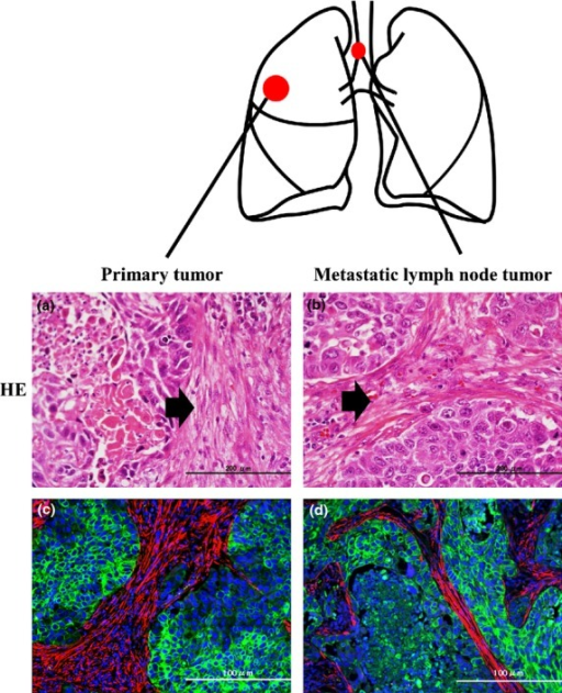 Staining with H&E and double immunofluorescence staining of tumor cells in a primary and a metastatic lymph node tumor in a patient with squamous cell carcinoma of the lung. (a,b) H&E staining in the primary tumor (a) and the metastatic lymph node tumor (b). Arrows indicate cancer-associated fibroblasts (CAFs). (c) Double immunofluorescence staining in the primary tumor. Blue, nucleus; green, AE1/3-positive cancer cells; red, α-smooth muscle actin-positive myofibroblasts (CAFs). (d) Double immunofluorescence staining in the metastatic lymph node tumor. Blue, nucleus; green, AE1/3-positive cancer cells; red, α-smooth muscle actin-positive myofibroblasts (CAFs).