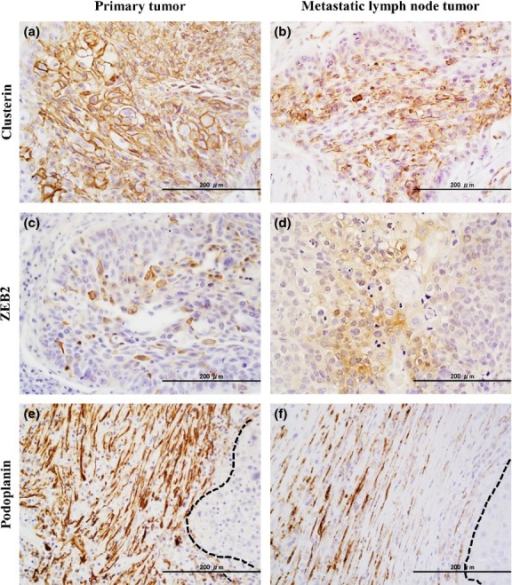 Immunohistochemical staining of tumor cells in a primary tumor and a metastatic lymph node tumor in a patient with squamous cell carcinoma of the lung. (a,b) Clusterin expression of cancer cells in the primary tumor (a) and the metastatic lymph node tumor (b). (c,d) ZEB2 expression of cancer cells in the primary tumor (c) and the metastatic lymph node tumor (d). (e,f) Podoplanin expression of cancer-associated fibroblasts in the primary tumor (e) and the metastatic lymph node tumor (f). Dotted lines show the margin of the cancer cell nest.