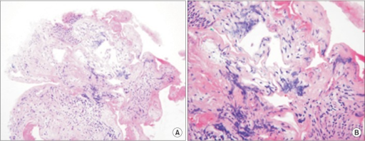 Photograph of histopathological specimen showing multiple dilated vascular spaces containing a few red blood cells (A, H&E stain, ×200; B, H&E stain, ×400).