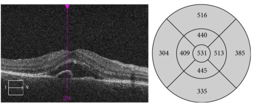 OCT scan 2 days after SDM treatment: large amount of subretinal fluid present as well as persistent small PED. Increase in the thickening of the sensory retina.