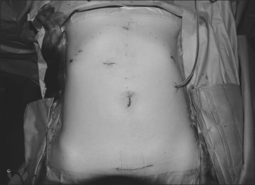 Postoperative wound status of patient abdomen.