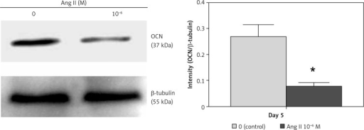 Effect of Ang II on OCN protein expression levels. ROS17/2.8 cells were cultured with 0 (control) or 10–6 M Ang II for 5 days, and the protein expression level of OCN were examined with Western blot analysis