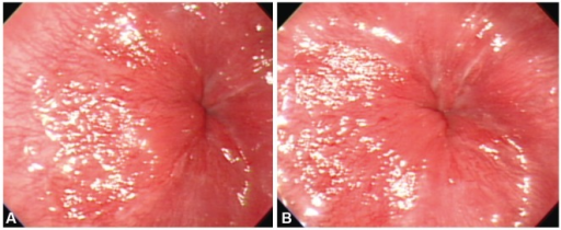 Botulinum toxin injection therapy to relieve achalasia. In total, 4 mL of botulinum toxin was injected at four points in the esophagogastric junction with 1 mL injected at each point. The photographs show the condition of the esophagogastric junction before (A) and after (B) the botulinum toxin injections.