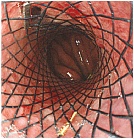 Esophageal stent insertion to relieve dysphagia of secondary achalasia. Endoscopic image of an esophageal stent (uncovered, 5 cm; Taewoong Medical) placed across the esophagogastric junction into the proximal stomach.