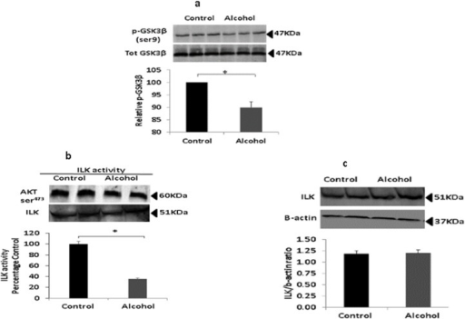 Prenatal alcohol impairs ILK activity.(a) Western blot analysis of total GSK3β and its Ser9 phosphorylation state was performed in hippocampal lysates from rats prenatally exposed to alcohol and nonexposed controls (n = 4). There was a significant decrease in the pGSK3β/GSK3β ratio in exposed rats, suggesting increased GSK3β activity as a result of alcohol exposure (p < 0.05). (b) Western blot analysis of expression of ILK in brain hippocampal protein lysates from exposed and nonexposed rats (n = 4). There were no differences in densitometric evaluation shows in expression of ILK as a result of alcohol exposure. (c) ILK activity assay was performed with pooled hippocampal protein lysates from control and alcohol rats (n = 4) and Akt ser473 phosphorylation assessed with western blot analysis. The quantitation of band density analysis shows reduced ILK activity in alcohol-exposed animals (p < 0.05).