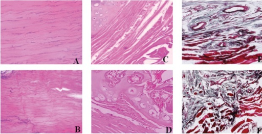 Histological examination results: (A) Sham group at the 10th week after operation, normal Achilles tendon tissues (HE, 400X); (B) PAT group at the 10th week after operation, degenerated Achilles tendon tissues (HE, 400X); (C) AT group at the 6th week after operation, cartilage cells seen inside degenerated Achilles tendon (HE, 400X); (D) AT group at the 10th week after operation, mature bone tissues, trabecular structure and marrow cavity could be seen (HE, 400X); (E) AT group at the 6th week after operation, bone lacuna and trabecular bone structure could be seen (Masson, 400X); (F) AT group at the 10th week after operation, mature lamellar bone structure could be seen (Masson, 400X).