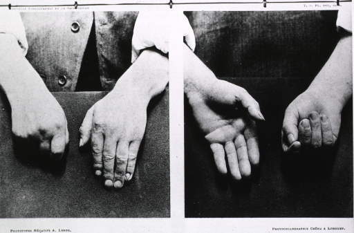 <p>Back and front view of hands showing a Parkinsonian deformity simulating muscle contraction.</p>