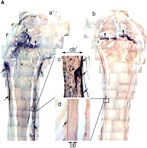 (A) Bone phenotype of the HB-GAM  transgenic mice. Femora from 1-yr-old transgenic (a and c) and nontransgenic (b and d) littermates. (a) HB-GAM is abundantly expressed  by osteocytes of the transgene-positive femur,  and it is widely distributed along the bone surface (arrows). (b) HB-GAM expression in the  transgene-negative femur is confined to the epiphyseal growth plate (arrowheads), which persists throughout life in rodents. Note that the  transgene-positive mouse (a) has developed a  much wider growth plate (arrowheads). (c)  HB-GAM is expressed in the transgene-positive  femur by the osteocytes of cortical bone (arrowheads) and localized to the bone surface (arrows)  in a similar manner to that found during regeneration (see Fig. 4 h). (d) HB-GAM is not expressed either by the osteocytes or on the bone  surface (arrow) in the transgene-negative femur.  The cortical bone of the transgene-positive femur (cb′ in c) is much thicker than that of the  transgene-negative femur (cb in d). (B) Histomorphometric analysis of femora of transgene-negative (Non tg) and transgene-positive mice  (Tg). The parameters followed the recommended nomenclature (Parfitt et al., 1987). (a)  Cortical bone volume (BT/TV,%): expressed as  the percentage of the cortical tissue area divided  by the cross-sectional area. (b) Cancellous bone  volume (BT/TV,%): expressed as the percentage  of metaphyseal area occupied by cancellous bone  excluding the cortices. (c) Bone marrow space  (mm2): area of metaphyseal marrow cavity excluding cancellous bone. Bars represent means ±  SEM. Statistical differences between the groups  were assessed by Student's t test (*P < 0.05,  **P < 0.01, n = 6 and 8 for nontransgenic and  transgenic mice, respectively).