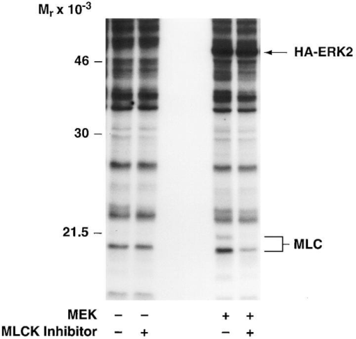 MLCK activity is required for MAP kinase-induced phosphorylation of MLC and cell migration. (A, upper panel) COS cells  were transfected with empty vector or mutationally active MEK+ along with an HA-tagged ERK2 reporter construct. Cells were allowed to migrate on a collagen substrate for 3 h in the presence or absence of the MLCK inhibitor KT5926 (10 μM) as described in  Materials and Methods. Cell migration was enumerated as described above. (Lower panel) Lysates prepared from these COS cells metabolically labeled with 32P were examined by SDS-PAGE and autoradiography. The position of HA-tagged ERK and MLC are denoted  by arrows. (B, upper panel) COS cells were transfected with mutationally active MEK+ and/or MLCK(Mut) and allowed to migrate on a  collagen substrate as described in Materials and Methods. Cell migration was quantified by counting the number of migrant cells per  high powered microscopic field as described above. (Lower panel) Lysates prepared from 32P metabolically labeled COS cells transfected as above were examined for phosphorylation of HA-ERK and MLC. The result shown is a representative experiment from at least  three independent experiments.