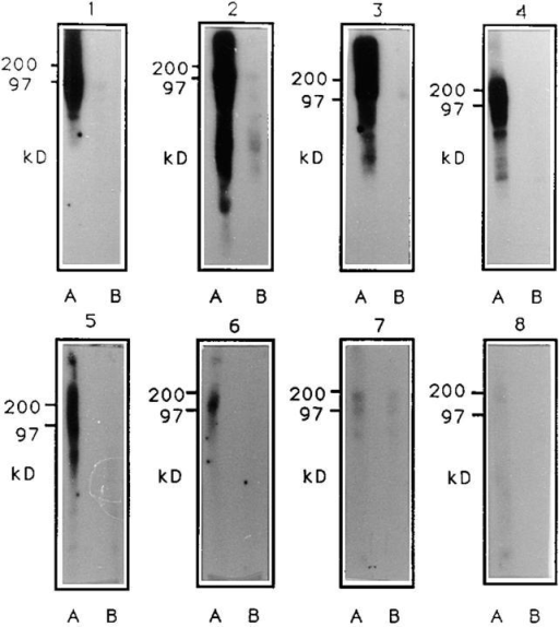 Immunoblot: membrane preparations from axenically cultured E. histolytica HM-1:IMSS (1), 200:NIH (2), HK-9  (3), and SFL-3 (4), xenically  grown E. histolytica SFL-3 (5),  axenically grown E. dispar  SAW760 (6), xenically grown E.  dispar SAW142 (7), and axenically grown T. vaginalis (8) were  separated by SDS-PAGE, blotted  onto nitrocellulose, and probed  with a 1:100 dilution of hybridoma supernatant from antibody  EH5 (A lanes) or buffer only (B  lanes). Bound antibodies were  detected with 125I-labeled sheep  anti–mouse antibodies.
