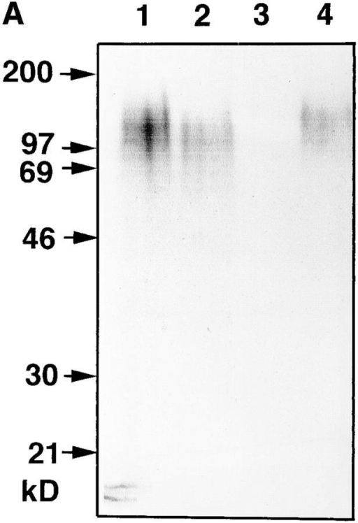 Metabolic labeling experiments. (A) Labeling with [3H]glucose. Lane 1, total PBS washed amebas; lane 2, fraction E, immunoprecipitated with antibody EH5; lane 3, fraction E, immunoprecipitated with  isotype-matched control antibody BIP 1; lane 4, fraction E, immunoprecipitated with amebiasis patient's serum. (B) Labeling with [32P]orthophosphate. Lane 1, fraction E immunoprecipitated with antibody EH5;  lane 2, fraction E immunoprecipitated with amebiasis patient's serum;  lane 3, fraction E immunoprecipitated with control antibody BIP 1. At  the left side, molecular masses from a protein marker are given for better  orientation. However, these cannot serve as size markers for molecules  such as lipophosphoglycans.