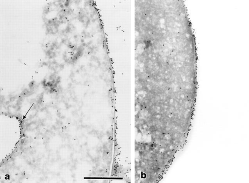 Cryosection immunogold staining of trophozoites stained  with antibody EH5, showing two areas of the trophozoite with (a) or  without (b) internal membrane-bound vesicle (bar = 0.5 μm).