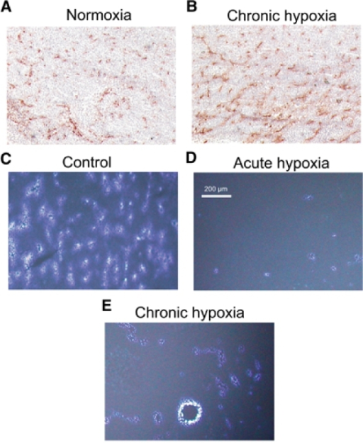 Examples of vascular patterns (CD31 staining) in tumours growing under either (A) normoxic conditions or (B) during chronic inspiratory hypoxia, and of perfusion distribution (Hoechst 33342 staining) under (C) normoxic control conditions, during (D) acute reduction of the inspiratory O2 fraction for 20 min or during (E) chronic inspiratory hypoxia. All images are scaled to the same magnification.