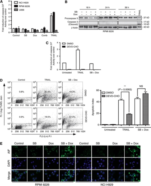 Effects of butyrate, doxorubicin or their combination on caspase 3 and 7 activation and AIF release in myeloma cells. (A, B) Effects of butyrate, doxorubicin and their combination on caspase 3 and 7 activation. (A) NCI H929, RPMI 8226 and U266 cells were treated with butyrate (SB; 300 μ for NCI H929 and 600 μ for RPMI 8226 and U266), doxorubicin (Dox; 40 n) or with their combination. After 24 h treatments, fold change in caspase 3 and 7 activity relative to untreated cells was assessed by caspase 3 and 7 glo kit (Promega Inc.). TRAIL (50 ng ml−1, Peprotech Inc., Rocky Hill, NJ, USA) was used as a positive control. Each data point in the bar graph is mean±s.e.m. of three independent experiments performed in triplicate. (B) Caspase 3 cleavage was assessed after 16, 24 or 36 h by subjecting 30 μg of whole-cell lysates (WCL) of RPMI 8226 cells to immunoblot analysis with a caspase 3-specific antibody. TRAIL-treated sample was used as a positive control and β-Actin as a loading control. (C, D) Effects of caspase 3 inhibitor DEVD-CHO on butyrate- and doxorubicin-induced apoptosis of myeloma cells. RPMI 8226 cells (1 × 106) were pretreated with either vehicle (DMSO) or 1 μ of cell permeable caspase 3-specific inhibitor DEVD-CHO (Biomol Inc.) for 2 h. Then the cells were left untreated or treated with TRAIL (50 ng ml−1) or butyrate (600 μ) plus doxorubicin (40 n). Caspase 3 and 7 activity was determined as in Figure 3A, and percentage of cells undergoing apoptosis was determined 48 h post-treatment by TUNEL assay as in Figure 2. Scatter plot shown is one of two independent experiments with similar results, in which 10 000 events were collected (top panel). Each bar on the graph is mean±s.e.m. of two independent experiments, and P-values of significantly different treatments are provided. (E) Butyrate plus doxorubicin combination results in nuclear translocation of AIF in RPMI 8226 and NCI H929 cells. RPMI 8226 or NCI H929 cells were left untreated or treated with indicated concentrations of butyrate, doxorubicin or their combination for 48 h. The localisation of AIF was assessed by indirect immunofluorescence staining with an AIF antibody followed by Alexa Flour-488-conjugated secondary antibody (Green staining). Nuclei of the cells were stained with DAPI (blue). Merged images were produced by superimposing both images. Results shown are representative of three independent experiments with similar results.