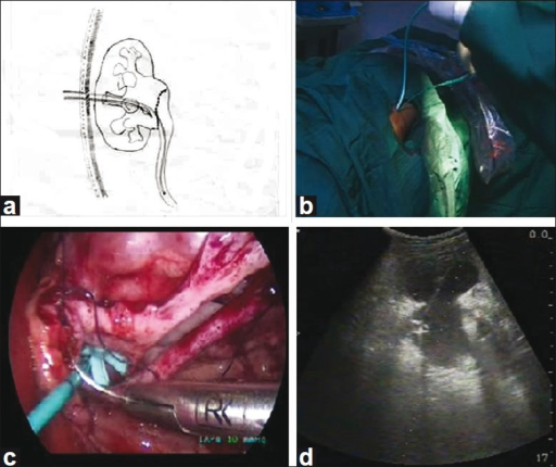 (a) Line diagram showing completed anastomosis with nephrostomy and ureteric catheter (splint) in situ, (b) Laparoscopic pyeloplasty performed after the ureteric catheter and percutaneous nephrostomy is in place c) Opened up renal pelvis showing presence of both malecot catheter and ureteric catheter in pelvis (d) Ultrasound showing flower of malecot catheter opened in pelvis