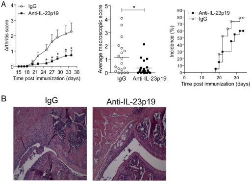 Administration of anti-IL-23p19 before onset prevents full-blown CIA.(A) DBA/1 mice were immunized with CII/CFA and three weeks later mice received a booster-injection. On days 15, 22 and 29 either anti-IL-23p19 (filled squares) or control antibody (open circles) was given intra-peritoneally. Macroscopic score (+SEM) and the average macroscopic score (average macroscopic score per individual mouse of all time points assessed, assessed by student t-test) of n = 20 mice per group from 2 independent experiments is shown, as well as the incidence.