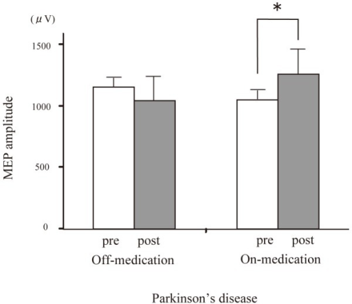 Effect of dopaminergic medication on PAS-induced modulation of the MEP amplitude with PD-on and-off.In PD patients, the average MEP amplitude in the right APB was significantly elevated after dopaminergic medication (*P<0.05).