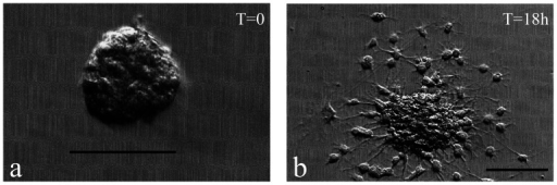 Inducing differentiation of FT-derived neurospheres.a) An individual neurosphere from a P5 FT (42 DIV) was plated at T = 0 on a laminin-coated coverslip and cultured in media that contained 10% serum. b) Morphological properties of differentiation were evident after 18 hours of exposure to these differentiating conditions. Scale bar: 100 µm.