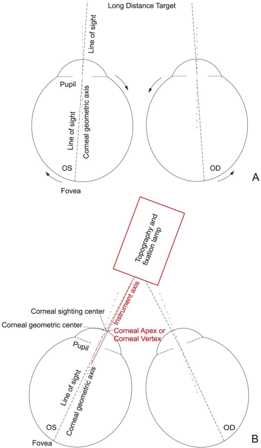 Convergence procedure.Bilateral eyes fixed on a long-distance target (A). When eyes are fixed on a near-distance target during measurement, bilateral eyes turn inward (B). Corneal geometric axis turns towards the nasal side and corneal apex provided by the instrument is located on the nasal side of the corneal geometric center.