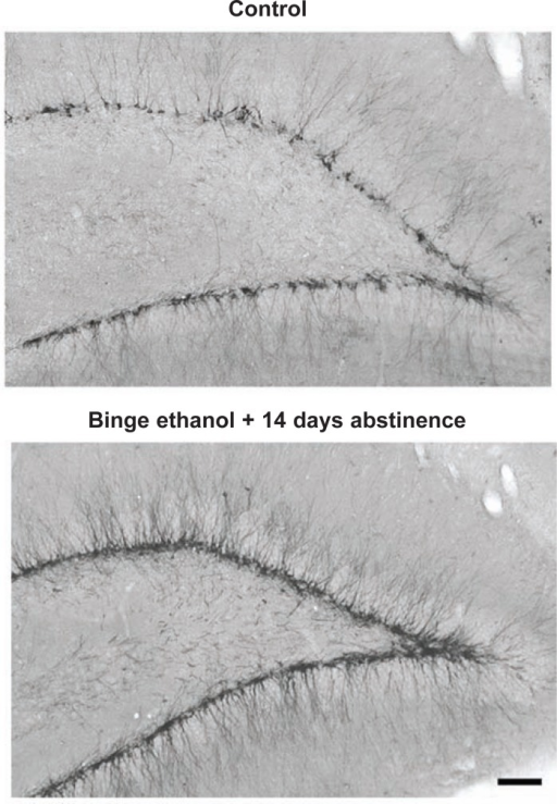 Neurogenesis during abstinence following binge alcohol treatment. The protein doublecortin (DCX) is expressed in neuroprogenitors during differentiation into mature neurons (Brown et al. 2003). The images show DCX immunohistochemistry in control subjects and after 14 days of abstinence following a 4-day binge-drinking period. Note the prominent increase in new neurons (exhibited by dark staining) being formed after 2 weeks of abstinence (Nixon and Crews 2004).