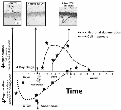 Regeneration of brain is related to increased phosphorylated cAMP-responsive element-binding protein (pCREB). The 4-day rat BIBD model time line illustrates the relationship between alcohol-induced degeneration, abstinence-induced neurogenesis, and pCREB. The temporal relationship of binge-induced neurodegeneration and abstinence-induced cell genesis can be examined by pCREB immunohistochemical staining in the dentate gyrus. Immunohistochemical staining is a process of localizing proteins in cells of a tissue section using antibodies that bind to specific proteins, such as pCREB. More staining means more protein. In the dentate gyrus granule cells (GCs) of control subjects, most neuronal nuclei have some pCREB+ immunoreactivity (IR), with higher levels of staining in the subgranule zone (SGZ), where neurogenesis is active (control, upper left image). In the diagram, values below the x-axis reflect degeneration or loss of brain mass. Markers of neuronal death increase throughout the 4 days of intoxication. Neurogenesis decreases and pCREB+IR is low (middle image). Markers of neuronal death persist into abstinence, although they progressively decline and mostly disappear after 1 week of abstinence (dotted line). Regeneration is represented by the dashed line increasing above the x-axis, with stars indicating time points of measured neurogenesis and other cell genesis (Crews and Nixon 2008). After 4 days of binge alcohol treatment, pCREB staining is decreased when neurogenesis is inhibited and granule cells degenerate. However, after 72 hours of abstinence, a marked increase in pCREB staining (top photo [4 days alcohol/72 hours withdrawal]) coincides with increased neurogenesis and loss of degeneration markers (Bison and Crews 2003).NOTE: CREB is a transcription factor altered by alcohol. When CREB is activated, pCREB is formed. The dentate gyrus is part of the hippocampus.