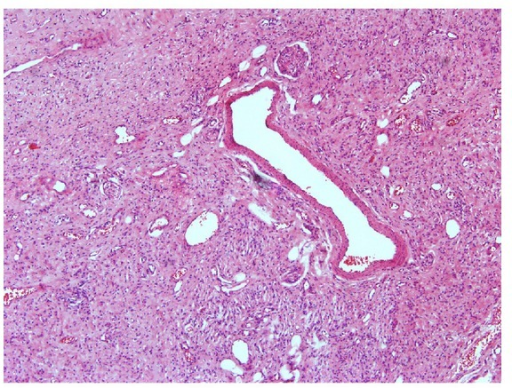 Peripheral nerve tissue within the perineural sheath and dilated blood capillaries.