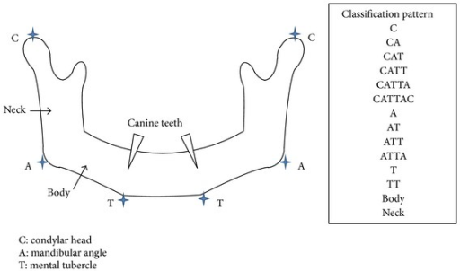 "The CAT classification system classifies segmental mandibular defects. ""C"" refers to defects in the condylar head of the mandible, ""A"" refers to defects in the mandibular angle, and ""T"" refers to defects in the mental tubercle. For example, resection of the mandibular angle is classified as ""A,"" resection of the condylar head and mandibular angle is classified as ""CA,"" resection of the entire hemimandible is classified as ""CAT,"" and resection of the mandibular angle and bilateral mental tubercle is classified as ""ATT."" In addition, the term ""body"" is used when only the mandibular body is resected, but the mandibular angle and the mental tubercle are preserved. Similarly, the term ""neck"" is used when only the mandibular ramus is resected, but the condylar head and the mandibular angle are preserved."